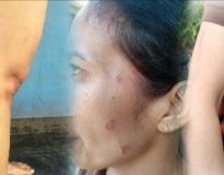 Kondisi korban dengan bekas luka penganiayaan di sekujur tubuhnya. (Foto: Deliknews.com)